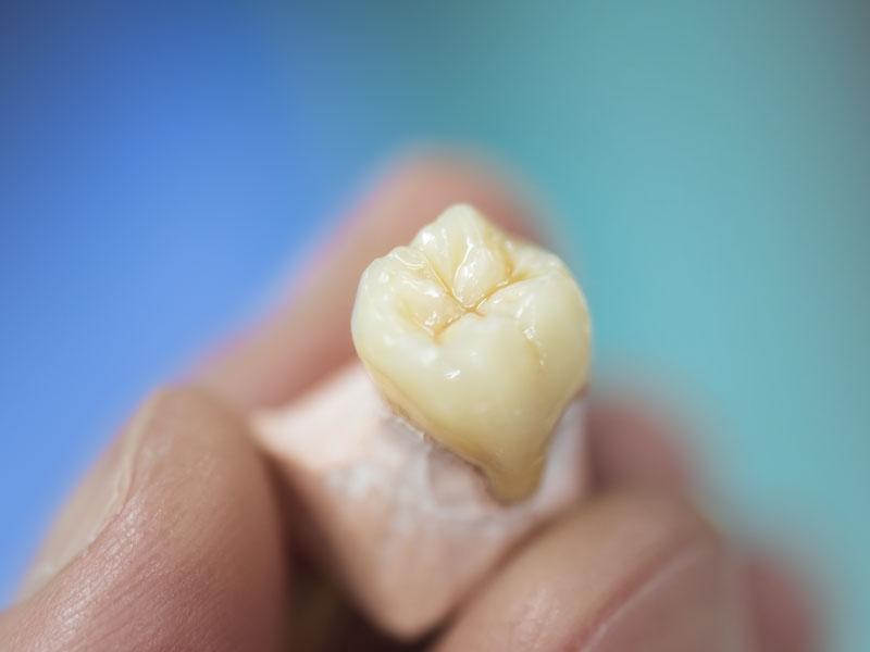 【植牙費用Q&A】植牙費用怎麼計算?專業醫師一次大公開