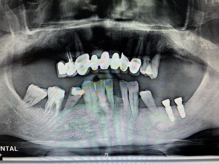 植牙案例宋子濃-2