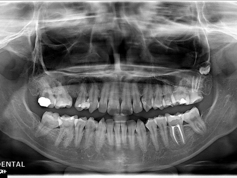 植牙案例鄭小姐-1