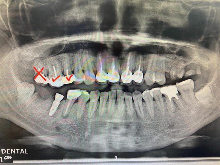 植牙案例-王女士2