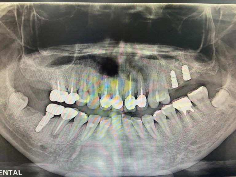 植牙案例-王女士4