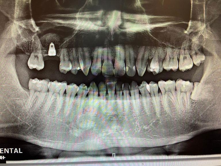 楊先生植牙齒拔除1
