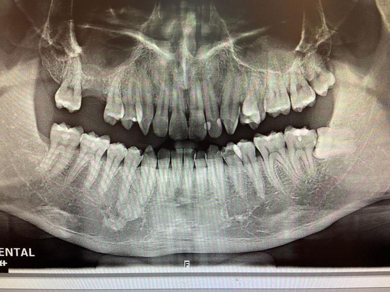 楊先生牙齒拔除2