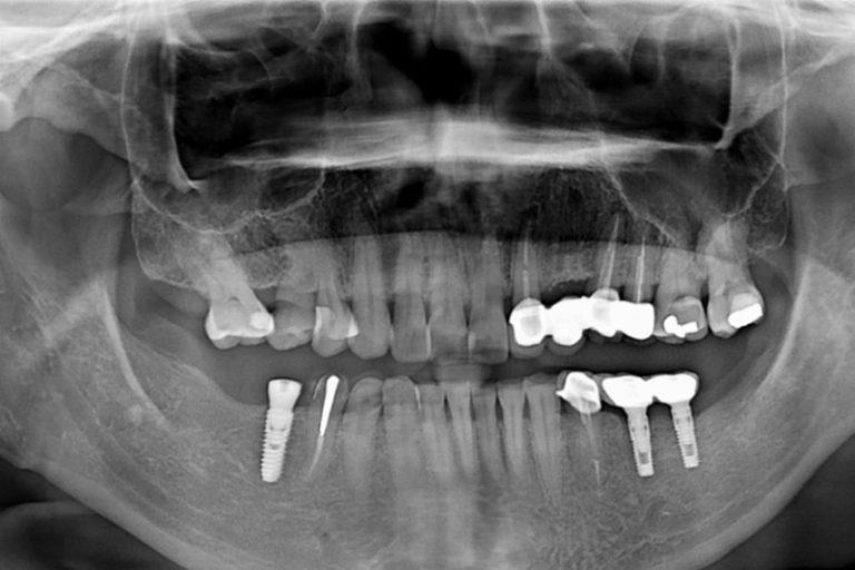 植牙-張德廉-1