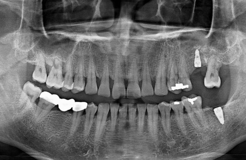 呂先生 – 植牙