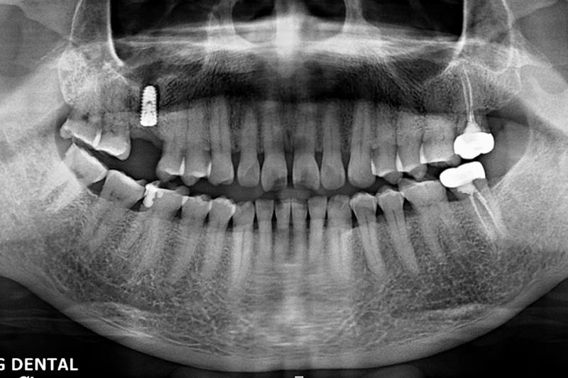 洪先生 – 植牙